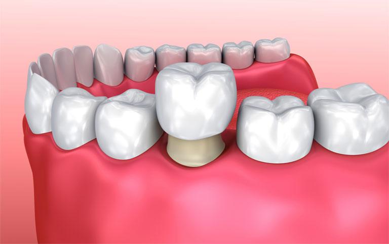 Bị viêm lợi sau khi bọc răng sứ