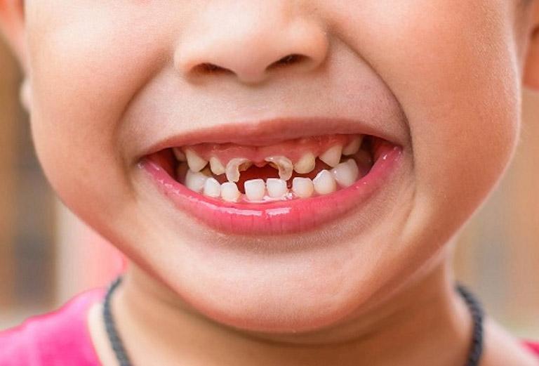 viêm nướu răng ở trẻ nguy hiểm không