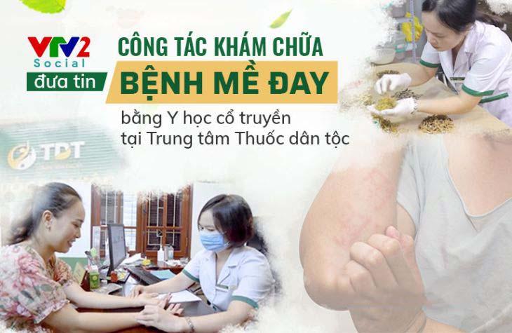 VTV2 đưa tin về công tác khám chữa bệnh mề đay, mẩn ngứa tại TT Thuốc dân tộc