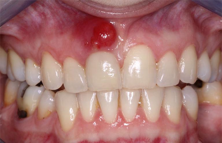 Áp xe lợi vùng chân răng