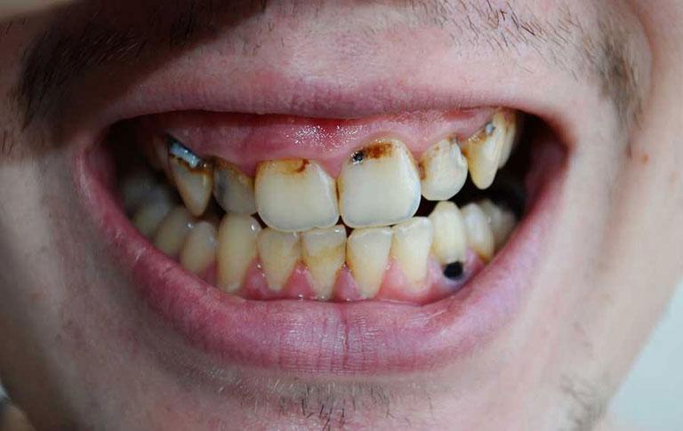Hình ảnh áp xe răng