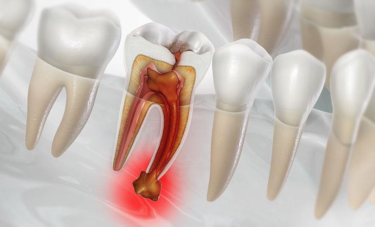 Hình ảnh áp xe ảnh hưởng đến tủy răng