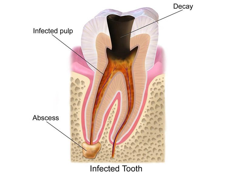 áp xe răng số 8
