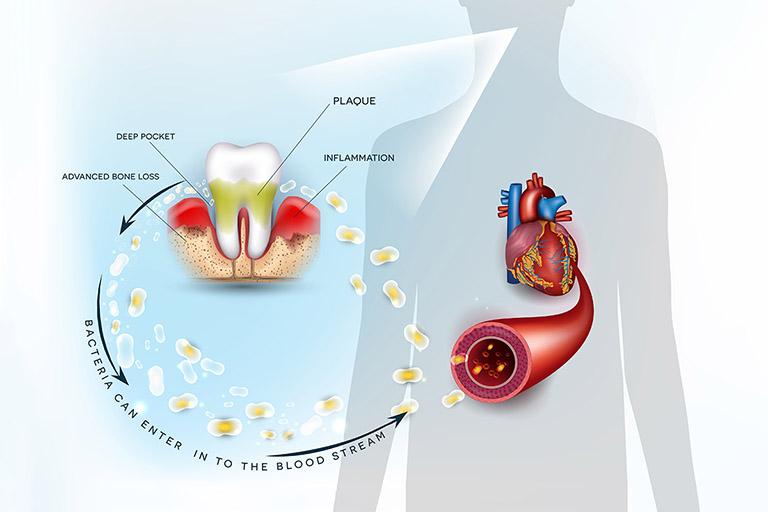 áp xe răng khôn là gì