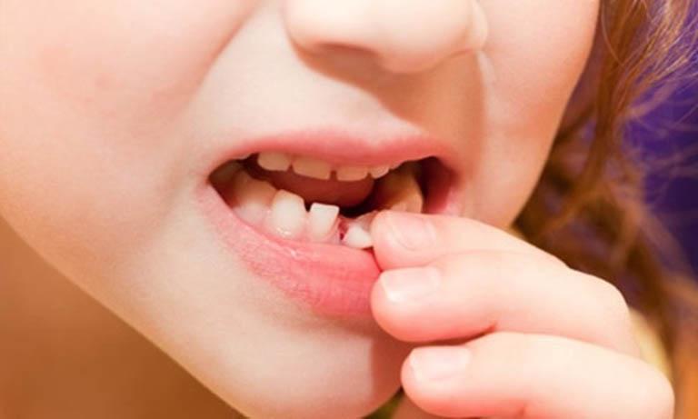 áp xe răng sữa ở trẻ em