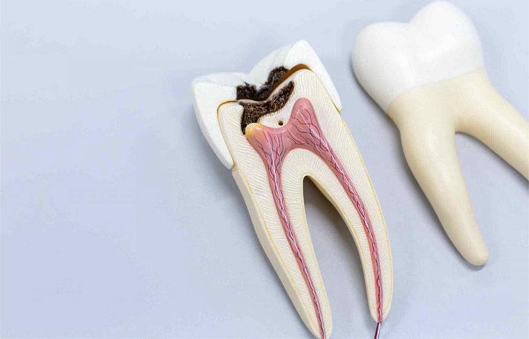 cách trị áp xe răng tại nhà