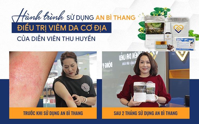 Tình trạng viêm da cơ địa của nghệ sĩ Thu Huyền được cải thiện khá tốt sau 2 tháng sử dụng An Bì Thang