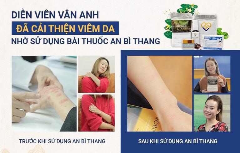 Tình trạng viêm da tiếp xúc của diễn viên Vân Anh đã được kiểm soát sau 1 liệu trình điều trị