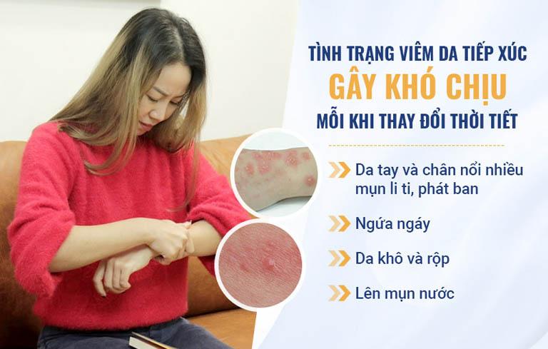 Mỗi khi thời tiết thay đổi, những triệu chứng viêm da của Vân Anh ngày một khó chịu