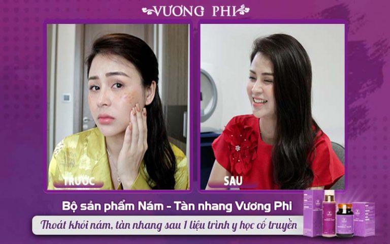 """Diễn viên Lương Thu Trang - Nữ chính phim truyền hình """"Hướng dương ngược nắng"""" từng điều trị thành công nám tàn nhang bằng bộ sản phẩm Vương Phi"""