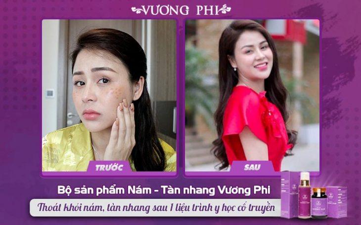 Diễn viên Lương Thu Trang trị nám thành công nhờ Bộ sản phẩm Vương Phi