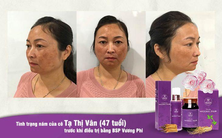 Cô Hồng Vân bị nám hỗn hợp che kín gần hết da mặt
