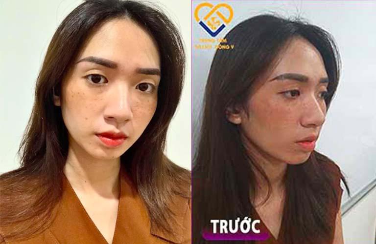 Cận cảnh da mặt nám, tàn nhang của Thanh Vân trước điều trị