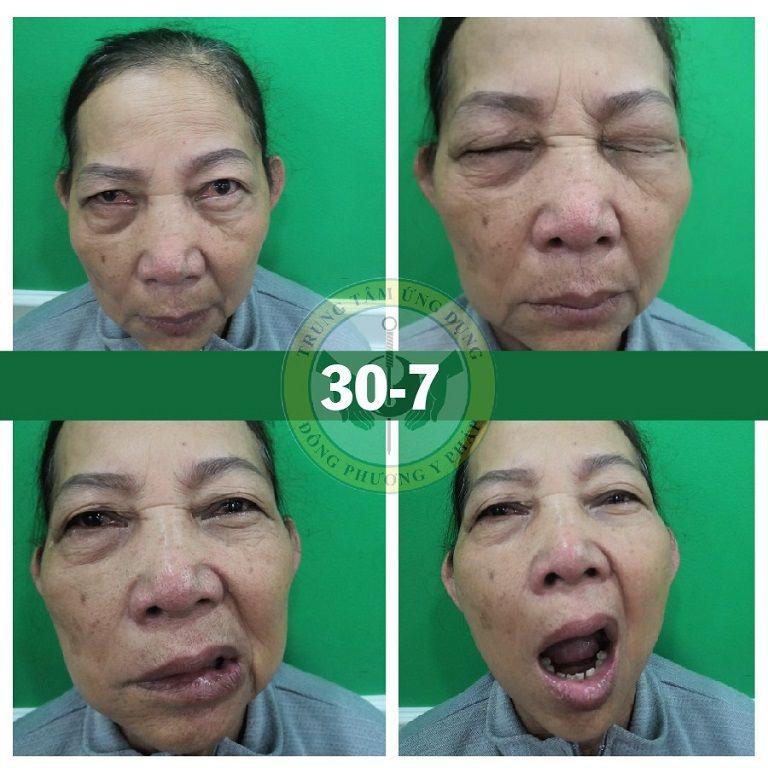 Cô Đỗ Thị Lá (Sài Gòn) bị liệt 7 ngoại biên