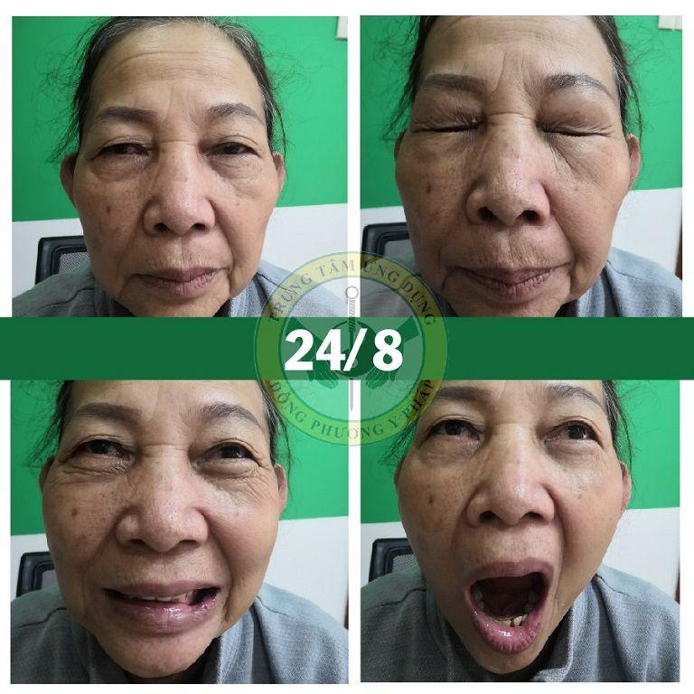 Cô Đỗ Thị Lá (Sài Gòn) sau 3 buổi trị liệu tại Đông phương Y pháp