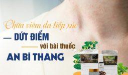Viêm da tiếp xúc có điều trị dứt điểm bằng bài thuốc An Bì Thang không?